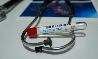 image-2020-04-23-23909255-41-testare-covid-19